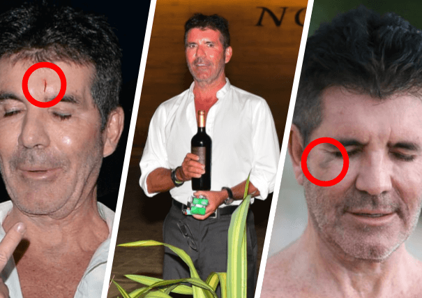 Simon Cowell's Frequent Injuries: Another Black Eye Raises Concern