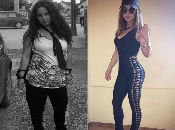 Lindita Halimi Before and After